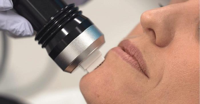 آر اف فرکشنال برای جوانسازی و درمان آکنه و منافذ باز پوست