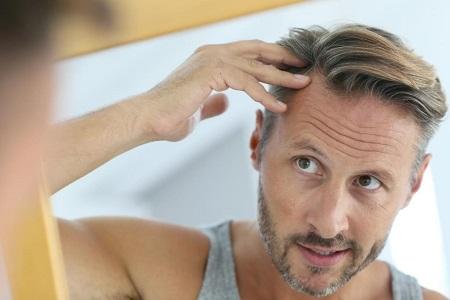 بهبودی پس از کاشت مو