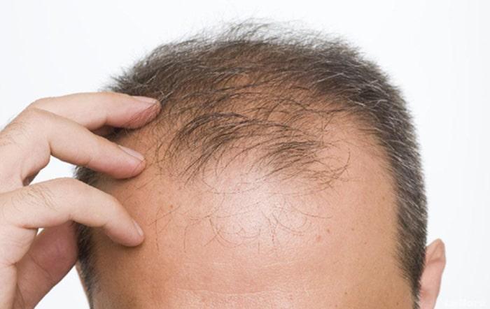 ریزش موی ارثی یا آندروژنیک