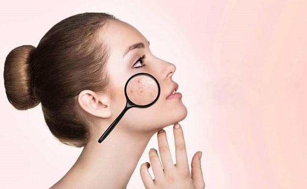 سابسیژن صورت(مزایا و روش انجام سابسیژن برای رفع اسکار آکنه)
