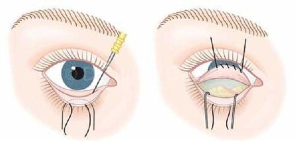 عمل جراحی پلک پایین