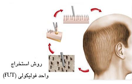 عمل-کاشت-مو