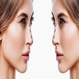 لیفت بینی چیست؟ روش جراحی و غیرجراحی تغییر فرم و سربالا کردن بینی