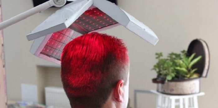 مزایای استفاده از لیزر کمتوان برای درمان ریزش مو