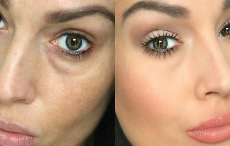 مزایای-درمان-گودی-و-سیاهی-زیر-چشم-min-470x300-min
