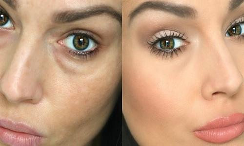 مزایای درمان گودی و سیاهی زیر چشم