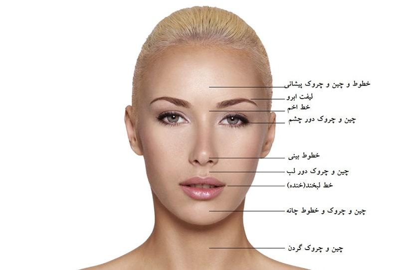 ناحیههای قابل درمان با تزریق بوتاکس-min