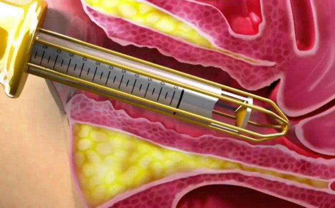 عمل تزریق ژل به واژن