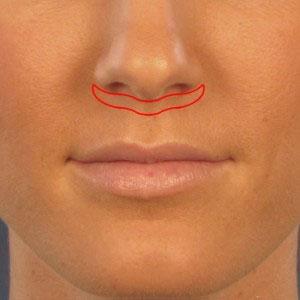 Sub-nasal