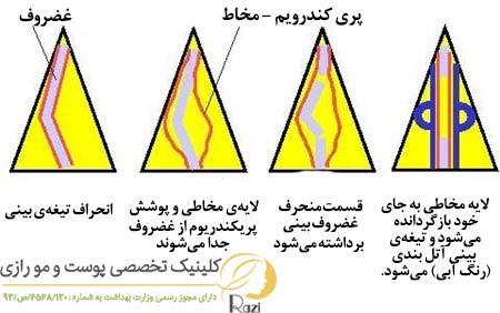 enherafbini6-min