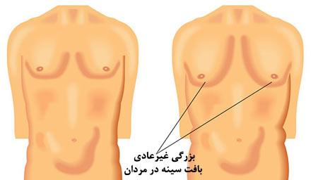 gynecomastia3-min