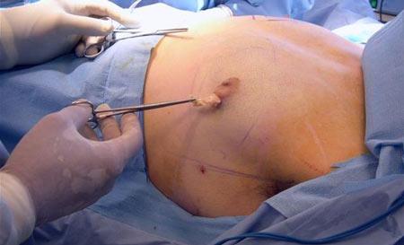 gynecomastia4-min