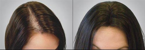 hair-loss2