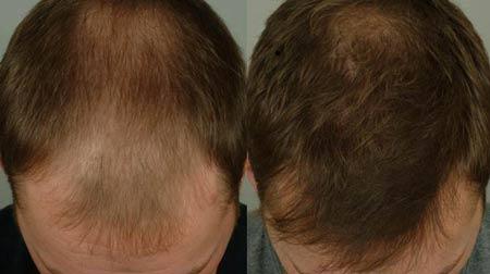 hair-loss5