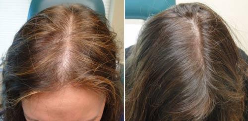 hair-loss7